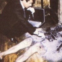 Spontaneous human combustion - one more thing to worry about